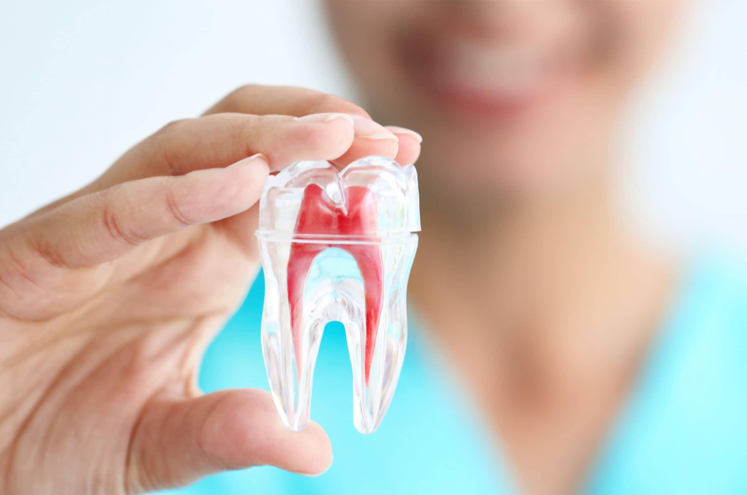 Endodonzia Studio Odontoiatrico Malagnino