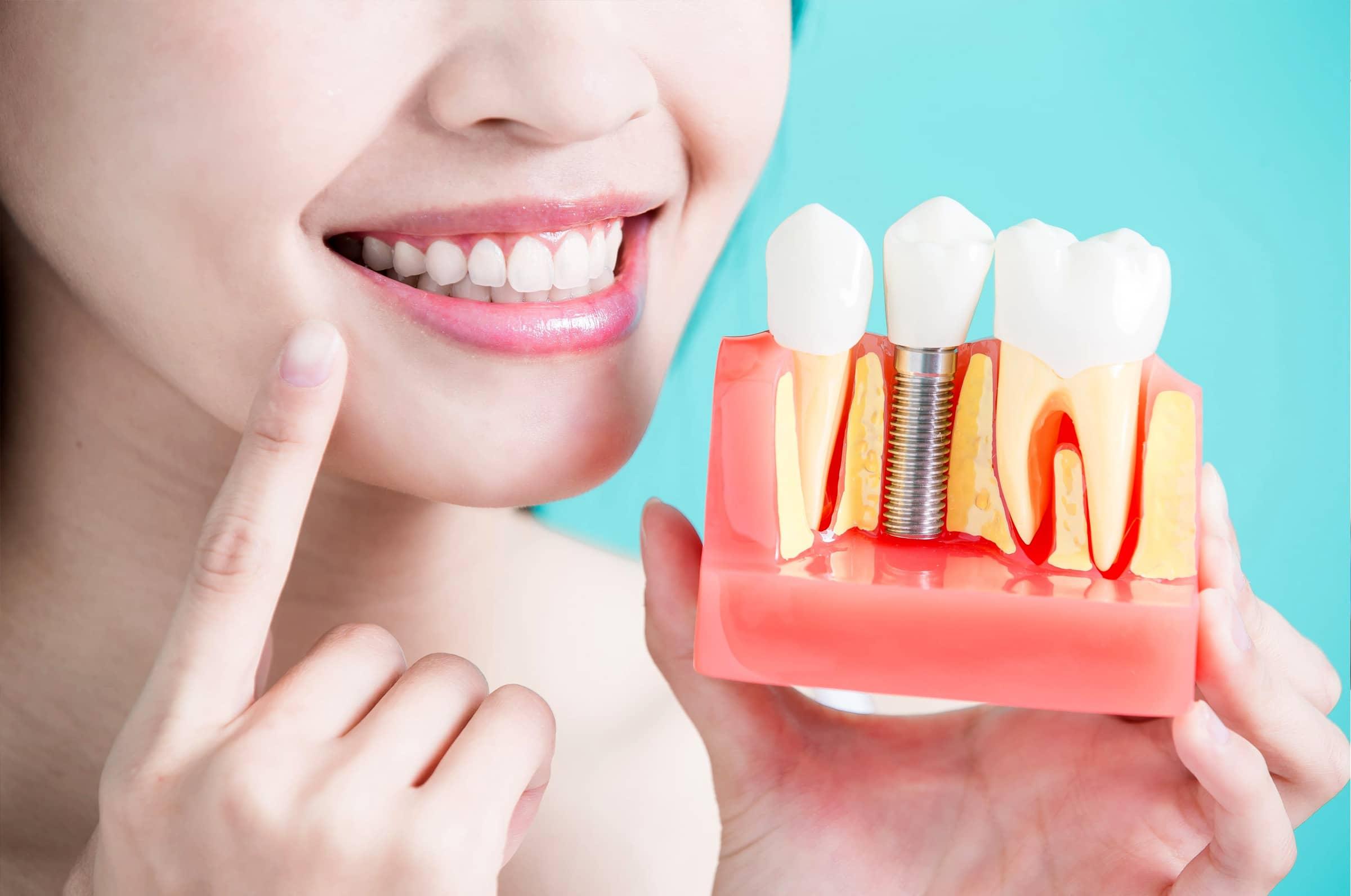Implantologia Dentale Studio Odontoiatrico Malagnino